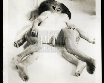 Rare Conjoined Twins Photo - Vintage Medical Photography