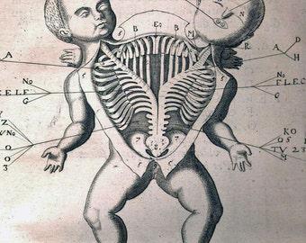 Vintage Medical Anatomy Illustration Siamese Twin Surgery 8x10 Real Canvas Art Print New