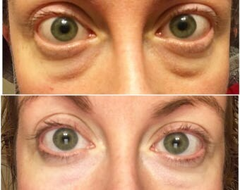 Time Machine - Green Coffee Eye Cream - Anti Aging - Dark Circles  - Puffy - Tired eyes - caffeine eye cream