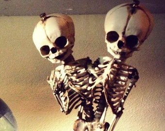 SALE Conjoined Twins Siamese Fetal Skeletons