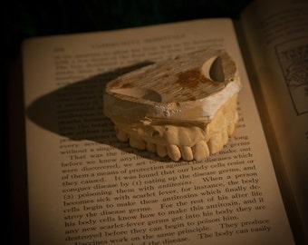Vintage Plaster Dental Cast