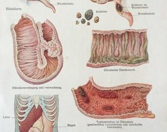 Vintage 1920s German Medical Anatomy Organs INTESTINAL DISEASES Diagram Bookplate