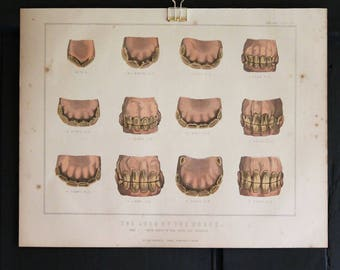 Antique Print - engraved illustration of Horses Teeth