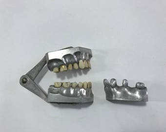 1920's Dental Study Model with Gold Fillings
