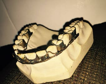 Vntg COLUMBIA DENTOFORM Dental Gum Display Mold Tooth Braces