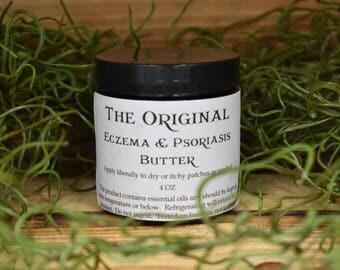Eczema & Psoriasis Butter ~4oz