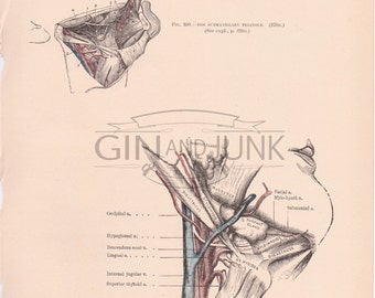 Antique Anatomy, Human Body illustration, of the Human Neck, Muscles and Throat, Surgical Plate, medical drawing, medicine, surgery, 1898
