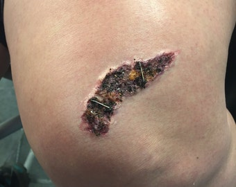 Scab Wound Pros-aid 3d Transfer Prosthetic