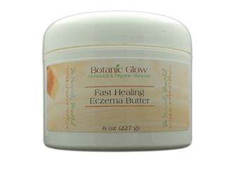 Fast Healing Eczema Butter 8 oz