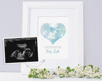 Miscarriage Keepsake/Baby Scan Keepsake/Baby Angel Memorial/Ultrasound Keepsake/Sonogram Keepsake/Miscarriage Memories/Miscarriage Memorial