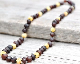 Raw Baltic amber necklace. MAXIMUM effective