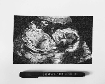 Ultrasound Pointillism