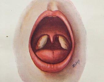 Tonsillitis diphtheria 1940s vintage medical illustration