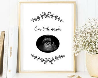 Our little miracle / baby scan print / new baby / miracle baby