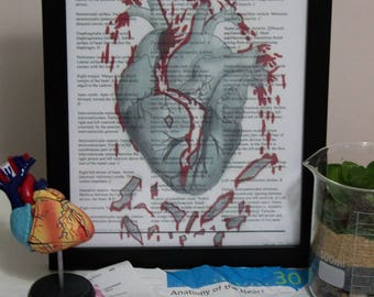 """Print of Anatomical """"Broken"""" Heart on Textbook Page"""