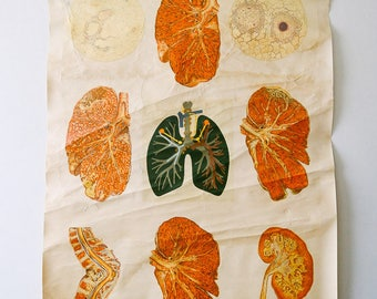 Original ANATOMICAL Vintage German Educational School Wall Chart TUBERCULOSIS TB Anatomy Medicine Deutsches Science Museum Beautiful Rare