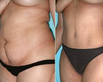 You may be fed up with trying to lose weight and keep it off? Yes? Get my ** Lipo-d'Solve** Gel today and change the past.  Lipo-d'Solve