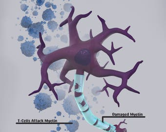 Multiple Sclerosis Illustration