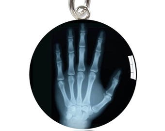 Hand X-Ray Sterling Silver Meniscus Charm or Pendant Medical Hospital Doctor Nurse Bones