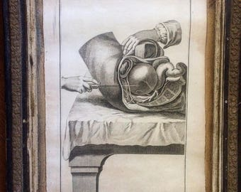 Authentic original Antique Print. SURGERY-Pl. 14-Denis Diderot-1751. The Encyclopedia. Cabinet de curiosités