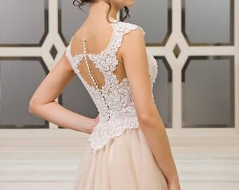 Lace Wedding DressSatin Dresswedding 2017Buttons On The Back