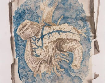 Anatomy of a Diabetic Pancreas || Original Fine Art Photographic Print || Medical Illustration Art || Alternative Photography Print