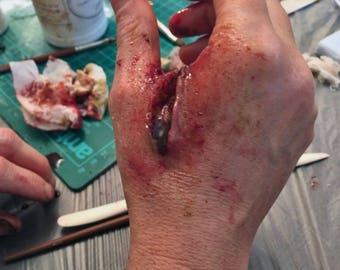 Prosthetic stab wounds