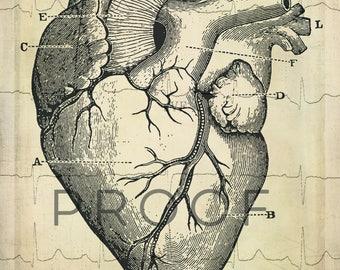 CUSTOM ORDER for ASHLEY, 8x12 Anatomical Heart Print, Vintage Style Cardiology Heart Digital Download, Cardiologist Office Art, Digital file
