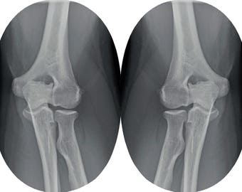 Inpatch X-Ray