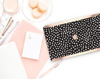 Dots and Black with Rose Gold Edge Hybrid Hard Case for Apple Mac Air & Mac Retina , New Macbook 2016 - Platinum Edition