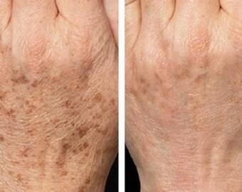 Age Spot Corrector - Age Spot Cream - Age Spot Lotion - Green Tea - Vitamin Cream - No Bleach Formula