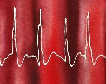 Red Atrial Fibrillation - original watercolor ekg painting