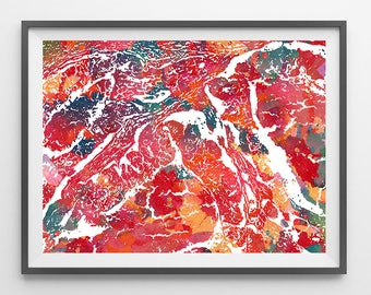 Adenocarcinoma Histology watercolor print human stomach pathology poster medical art esophagus cancer anatomy digestive system wall decor