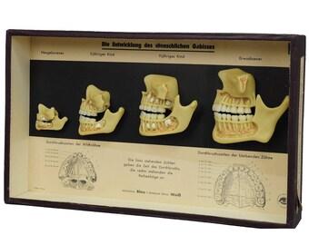 wax specimen showcase human bite development