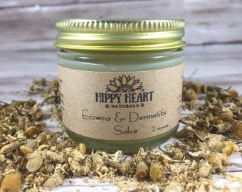 Eczema & Dermatitis salve / itchy skin / relief / vegan / natural