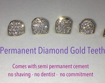 Permanent Diamond Gold Teeth | Pave Handset Individual Gold Caps | Custom Diamond Fronts | No Dentist Needed