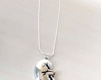 Kidney Necklace Kidney Transplant, Kidney Disease Kidney Donor Gift YOU Select Chain Material and Length