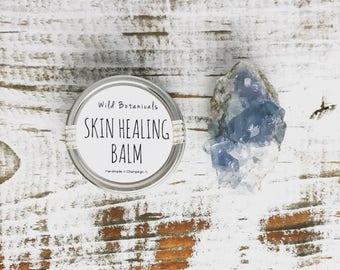 Skin Healing Balm, Scar Regenerating Balm, Dry Skin Balm, Cell Regeneration, Vegan
