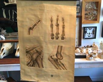 Vintage anatomical chart fracture St John's ambulance