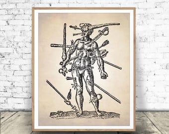 Wounds Man PRINTABLE, Human Anatomy Print, Anatomy Illustration, Wounds Man Surgical Illustration, Surgery Print, Anatomy Print, INSTANT ART
