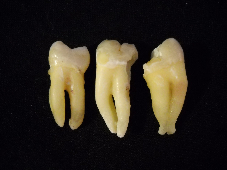 Real human teeth - photo#4