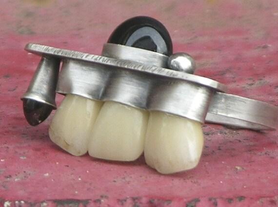Over Bite Teeth Ring Made With Vintage Fake Teeth Garnet Onyx